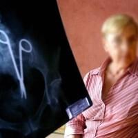 Idős hölgy mutatja, hogy ollót felejtettek benne a röntgen felvételek alapján.