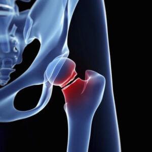 Röntgenfelvétel a combnyaktörésről, pirossal jelölve, hol a sérülés.