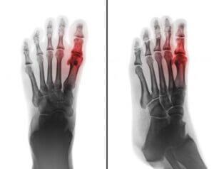 Röntgenfelvétel a lábközépcsont-törésről, pirossal jelölve, hol a sérülés.