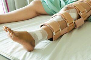 Törött lábszárt rögzítettek a megfelelő módon.