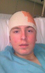 Thomas Buckett a koponyasérülést okozó esést követően a kórházban.