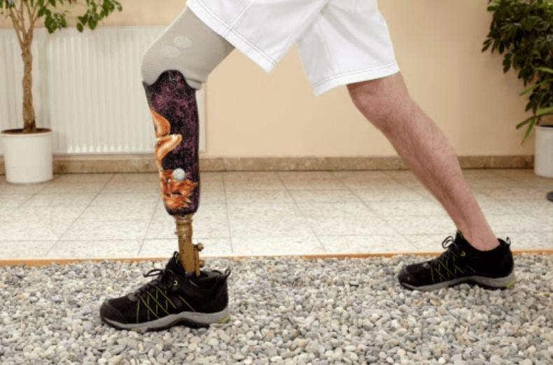 Végtagvesztés dizájnos protézissel korrigálva.