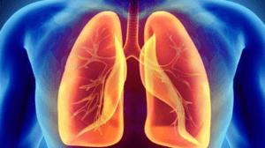 Krónikus lerokkanás okozta tüdőbaj grafikán.